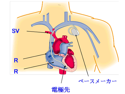 鎖骨下静脈から局所麻酔下にペースメーカリード線を右心室や右心房まで挿入... 循環器内科|診療科